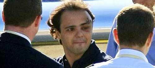 Felipe Massa al ser dado de alta.